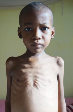Tombozafy.Ratowanie życia niedożywionych dzieci w Mampikony (Madagaskar)
