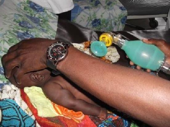 Sprzęt medyczny dla szpitala w Moutourwa (Kamerun)
