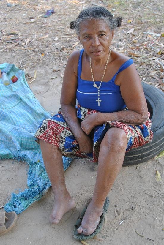Budowa dwóch wiosek dla trędowatych (Madagaskar)